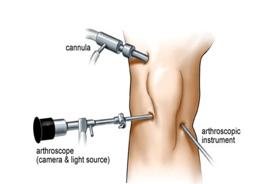 Arthroscopic surgery clovis ca
