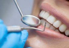 dentist wisdom tooth extraction singapore