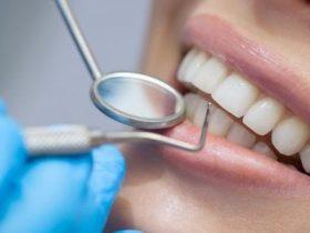 dentist wisdom tooth extraction singapore